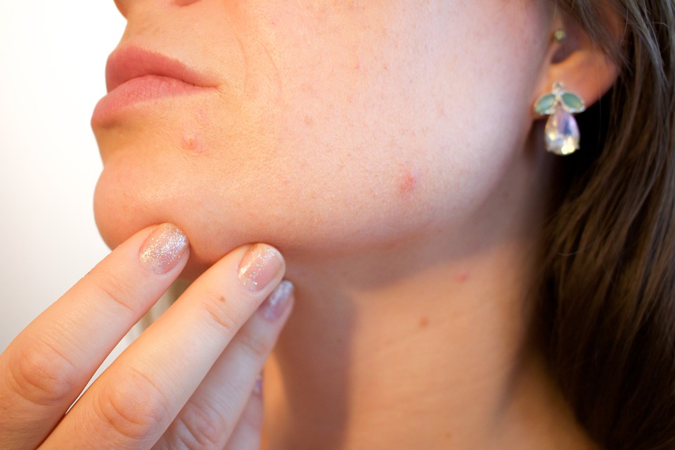 helicobacter kožné problémy